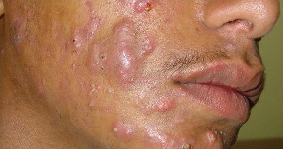 Traditional Medicine Acne Treatment - Bubblews acne-2